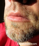 Day 1 of The 'stache. Actually it's like 2-3 days growth, but it counts as the first day (Nov. 9) for the challenge.